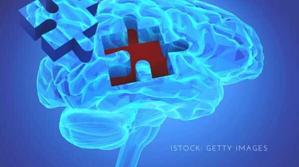 Istock- Getty Images brain