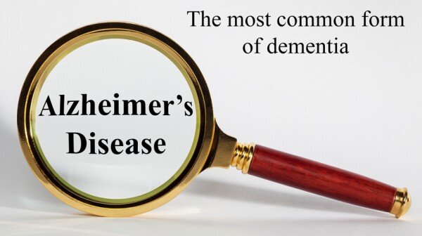 Alzheimer's Disease Concept