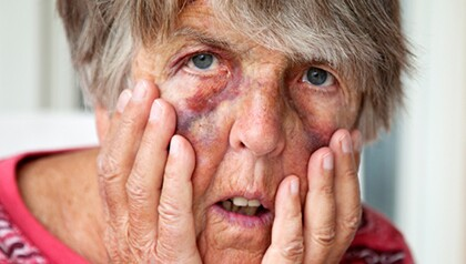 #20809371_bruised, battered